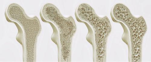 image-pathologie-osteoporose